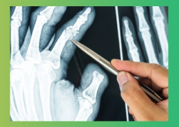 تقویت مفاصل و تسکین دردهای مفصلی و استخوان ها